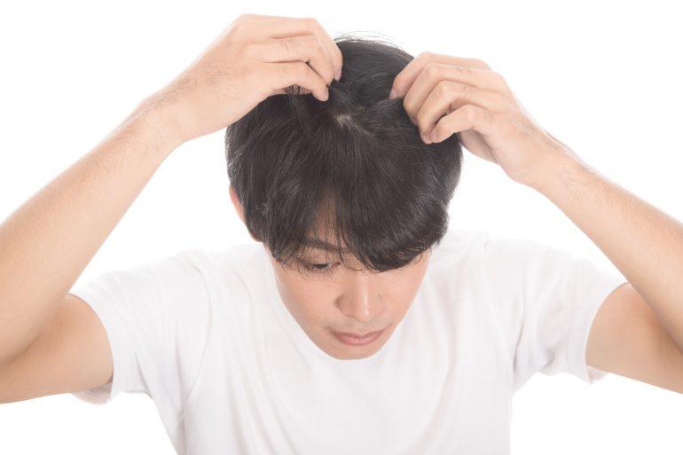 AGA_男性型脱毛症|仙台市若林区の心療内科